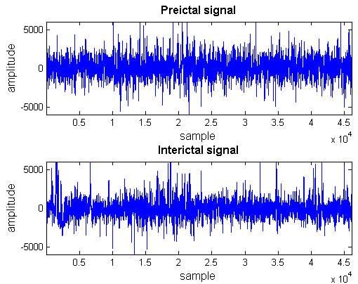 EEG Signal